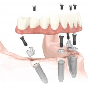 implantes dentales all-on-four-imoi