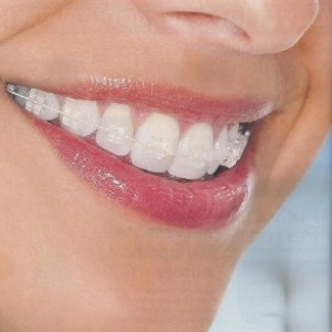 orthodontics-with-brackets-of-sapphire-imoi