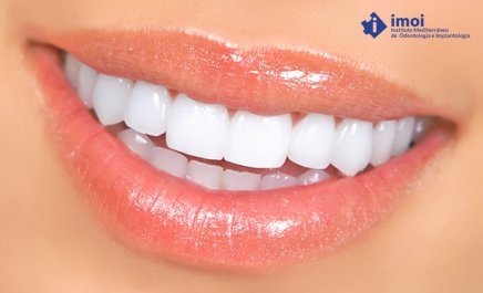 carillas-de-porcelana-Estetica-dental